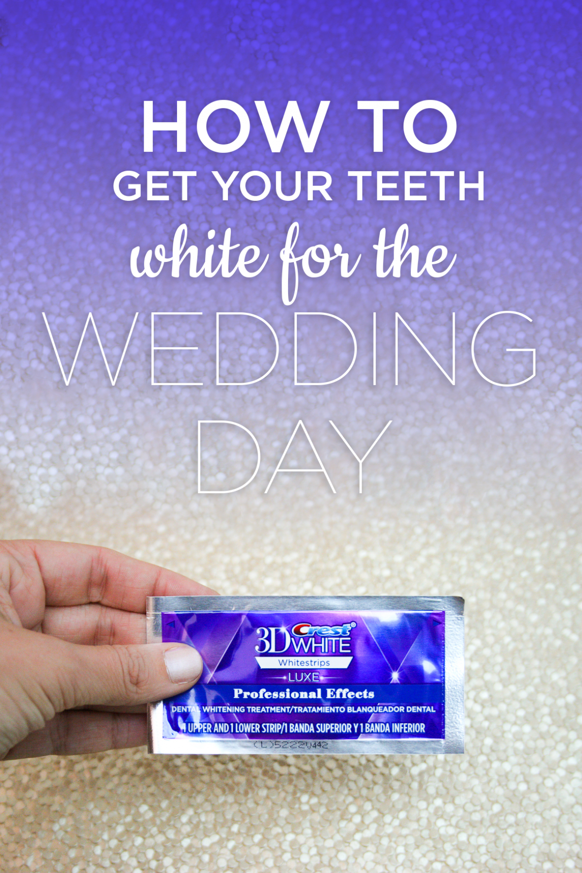 how to get your teeth white for the wedding day