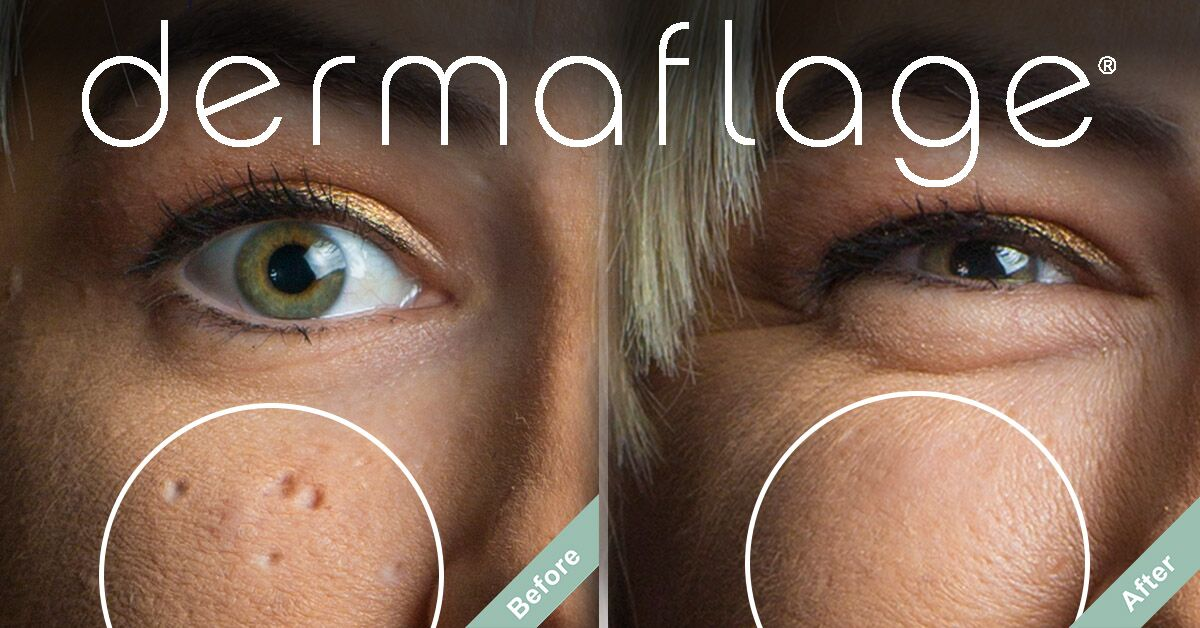Don't spend your precious wedding funds on just any scar filler makeup. Instead, try Dermaflage, a silicone-based scar cover that acts like real skin.