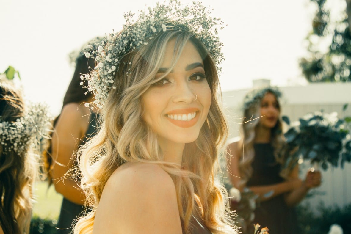 How to Get a Picture Perfect Smile for Your Wedding on a Budget
